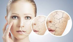Kako skrbimo za kožo v zimskem času?